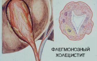 Флегмонозный холецистит — причины, симптомы и лечение
