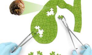 Холецистит – симптомы и лечение у взрослых