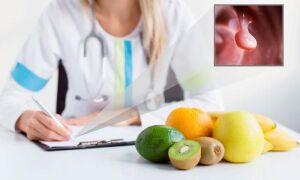 Питание при полипах в желчном пузыре и после их удаления