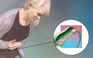 Симптомы приступа желчнокаменной болезни
