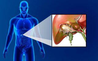 Симптомы перфорации желчного пузыря
