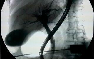 Что такое холецистография. Пероральная и внутривенная холецистография