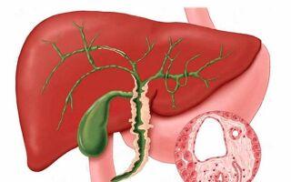 Опухоль желчного пузыря и желчевыводящих путей – стадии и прогноз