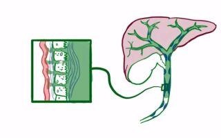 Все о склерозирующем холангите