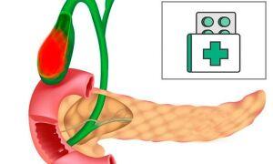 Дискинезия желчных путей – диагностика, симптомы и лечение