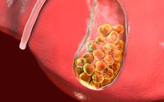 Острый калькулезный холецистит: проявление болезни и способы лечения