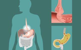 Почему желчь попадает в желудок и как избавиться от рефлюкса