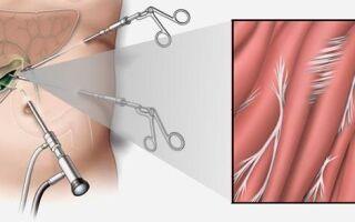 Спайки после лапароскопии желчного пузыря – что делать