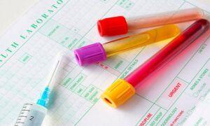 Проведение лабораторных анализов и аппаратных исследований при холецистите