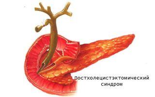 Что такое постхолецистэктомический синдром