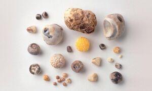 Камни какого размера могут выйти сами