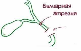 Билиарная атрезия желчевыводящих путей – что это такое, симптомы и лечение