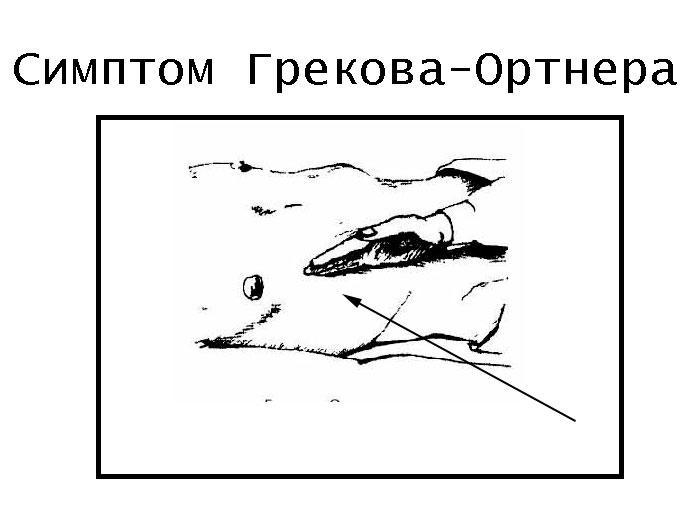 Симптом Грекова-Ортнера