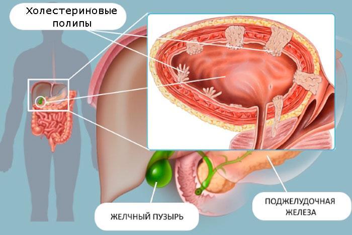 холестериновые полипы в желчном