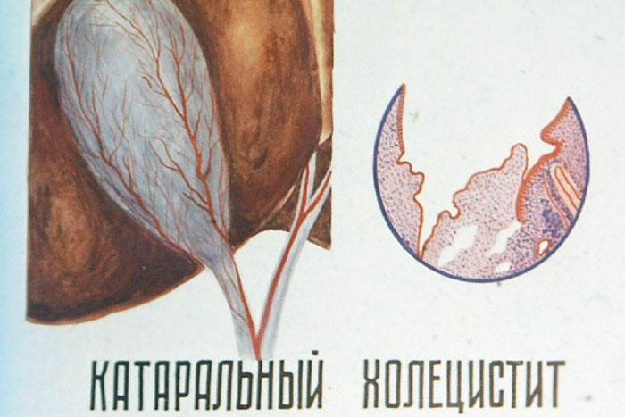 катаральная форма холецистита