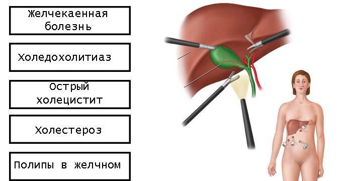 показания к лапароскопии