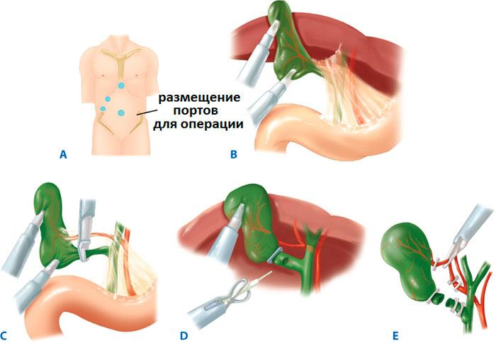 этапы лапароскопии желчного