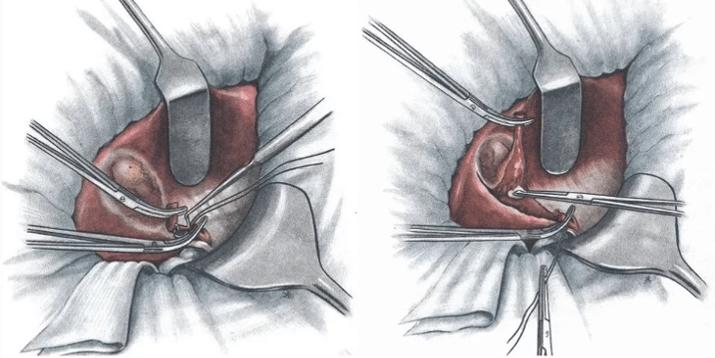 лапаротомия желчного