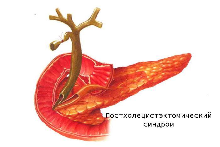 посхолецистэктомический синдром