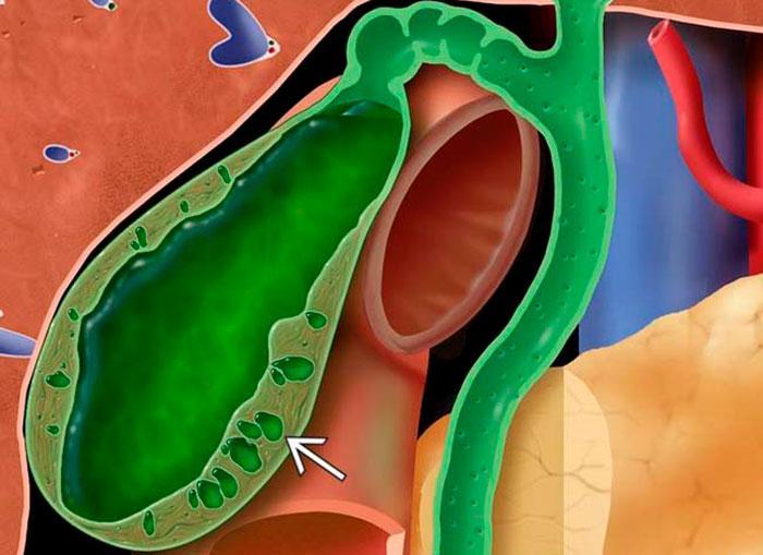 аденомиоматоз