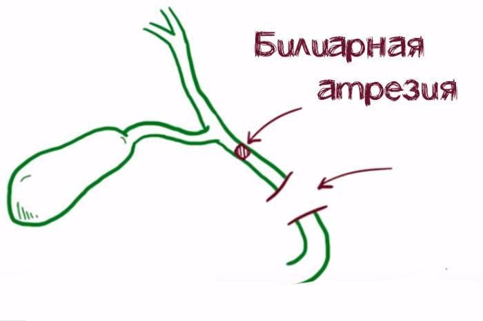 билиарная атрезия