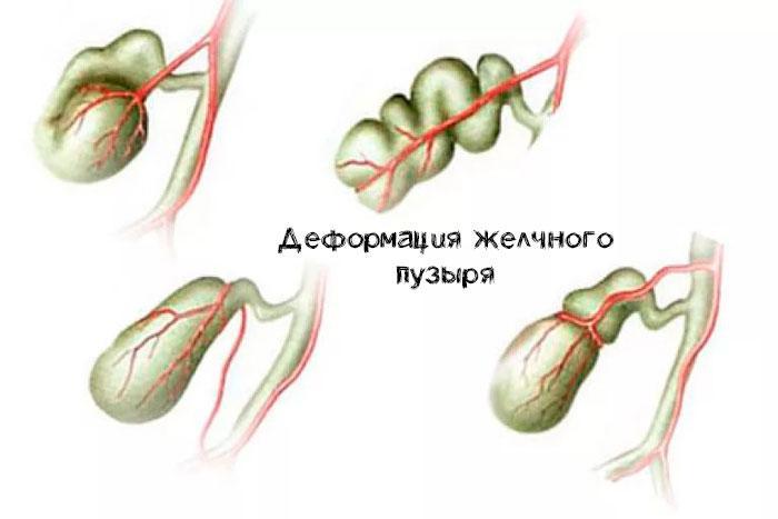 Деформация желчного