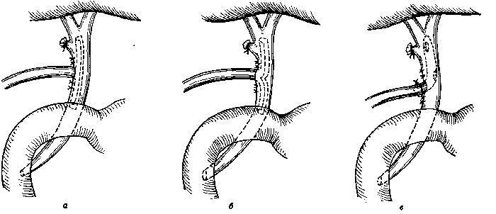 наружное дренирование общего желчного протока