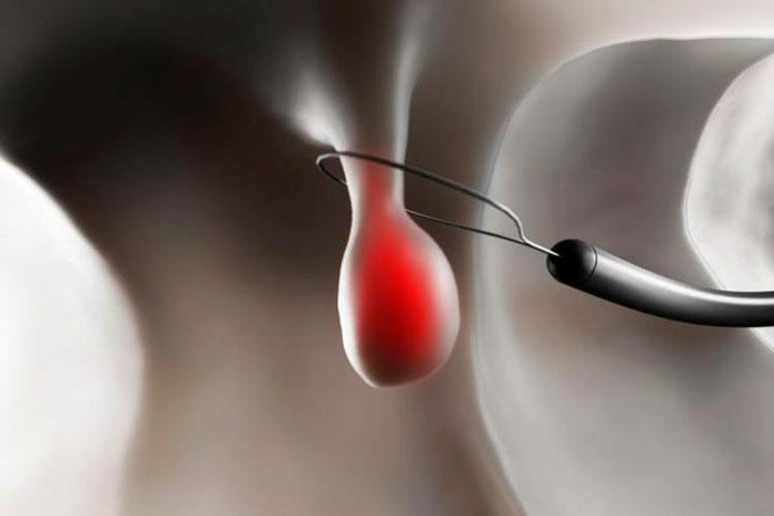 проведение эндоскопической полипэктомии желчного пузыря