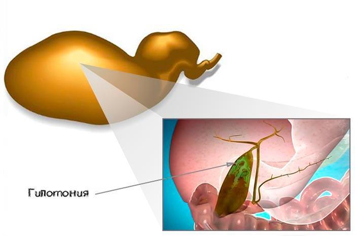 гипотония желчного пузыря
