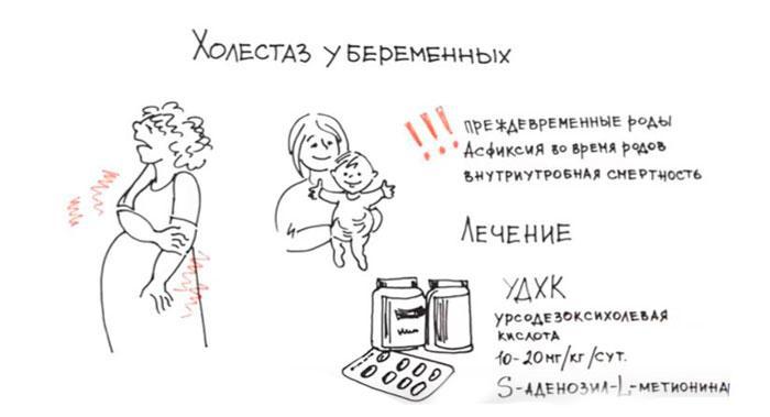 лечение у беременных