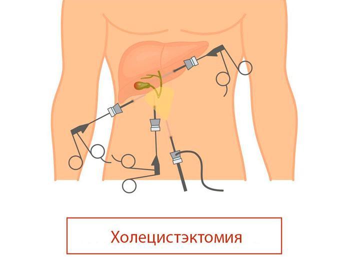 холицистэктомия