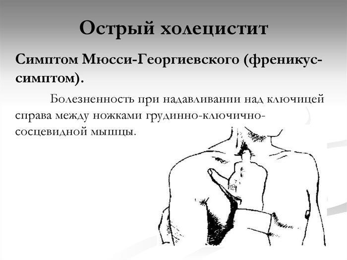 Мюсси Георгиевского