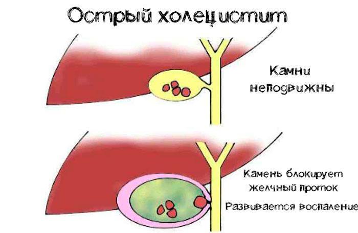 Механизм развития острого холецистита