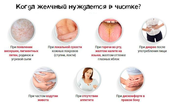 симптомы болезни желчного