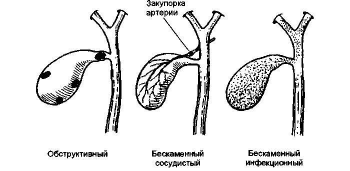 закупорка артерии желчного