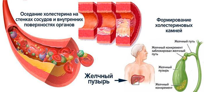 холестероз