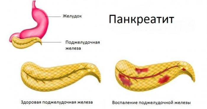 Что делать при рвоте желчью