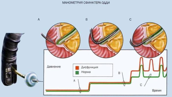 манометрия