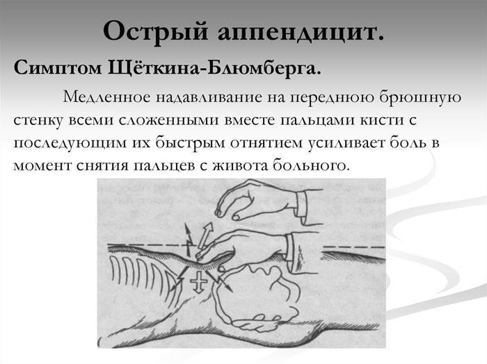 Щеткина Блюмберга