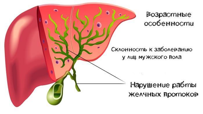 причины склерозирующего холангита