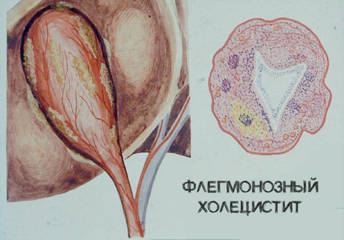 флегмонозный холецистит