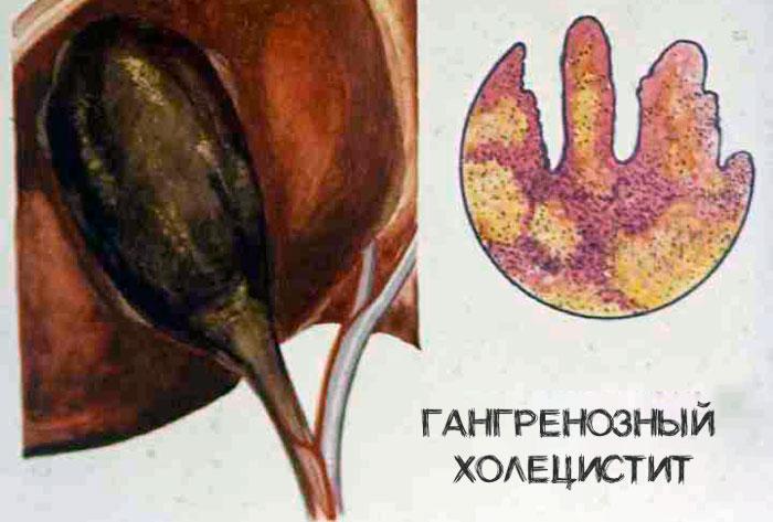 гангренозный