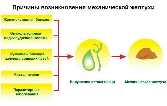 причины желтухи