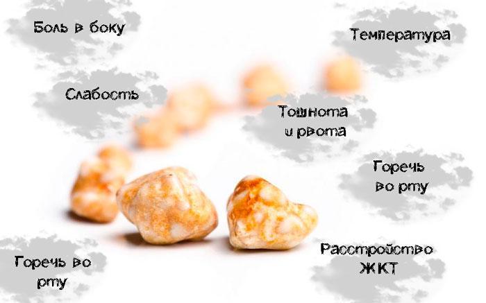 симптомы конкрементов в желчном