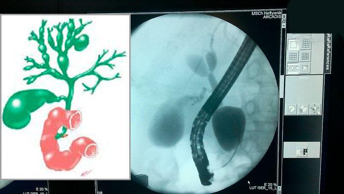 схема и КТ болезни кароли