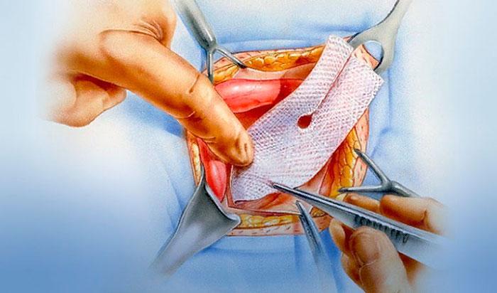 процедура герниопластики