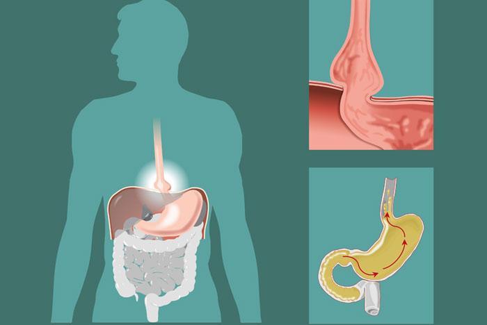 попадание желчи в желудок