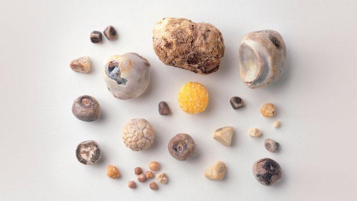 камни из желчного