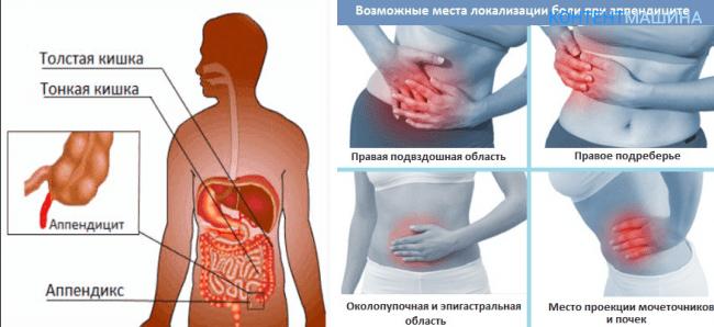 Аппендицит и проявления болевых ощущений