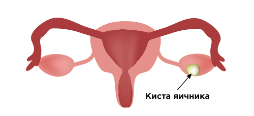 Воспаление и киста яичника вызывают боль в правом подреберье